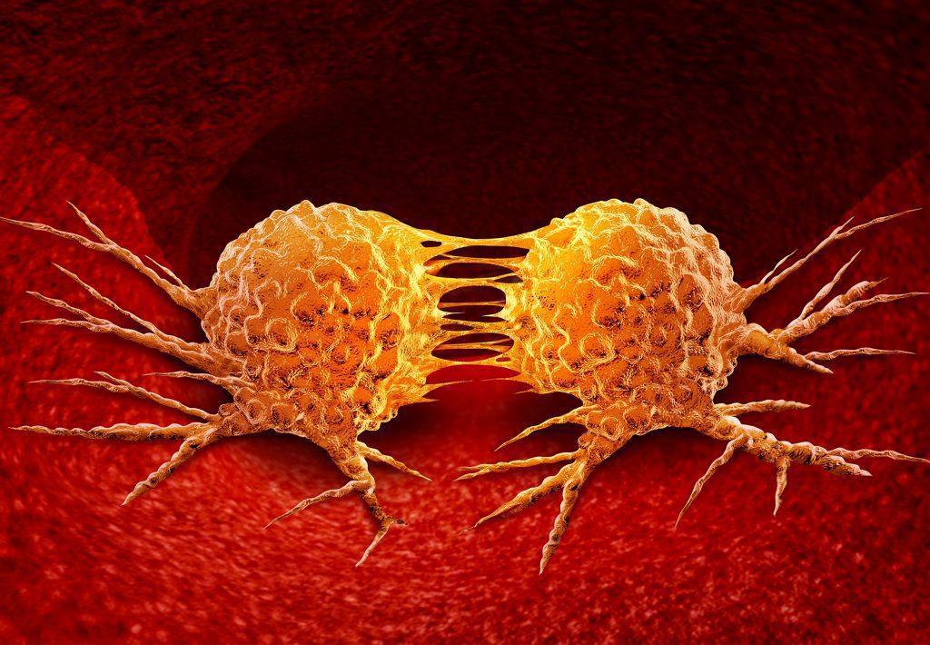 """cellule tumorali tumori 1024x710 - Pellegrino (Iv): """"Recupero cure oncologiche, Ospedali tornino a funzionare regolarmente"""""""
